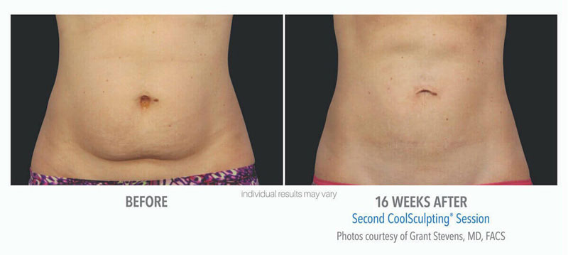 Coolsculpting Before and After Abs