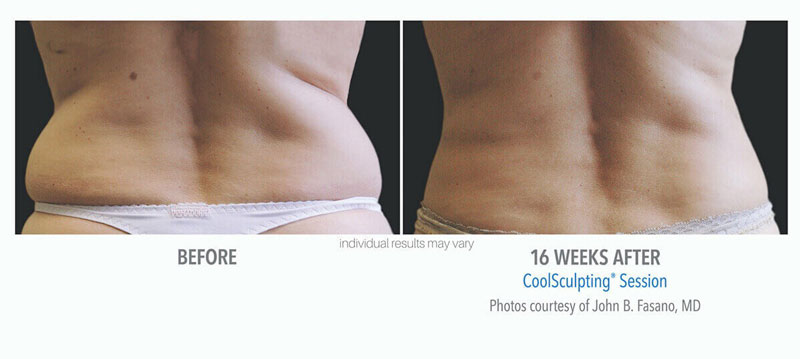 Coolsculpting Before and After Flanks