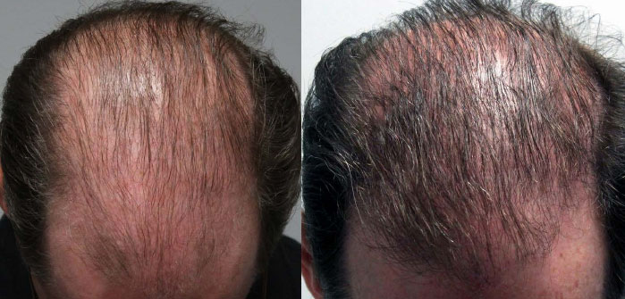 Non-Surgical Hair Loss Treatment, Phoenix