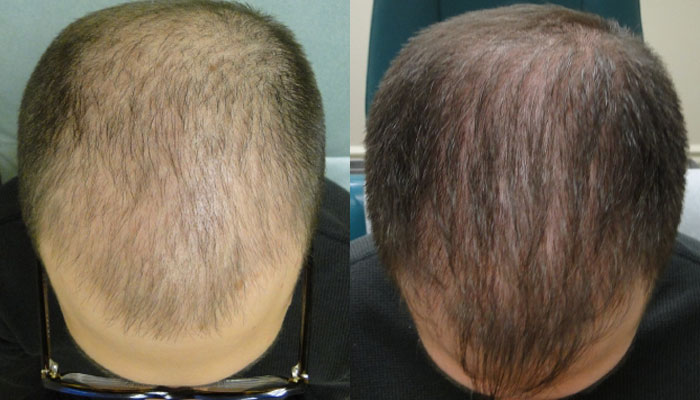 Non-Surgical Hair Restoration, Phoenix AZ