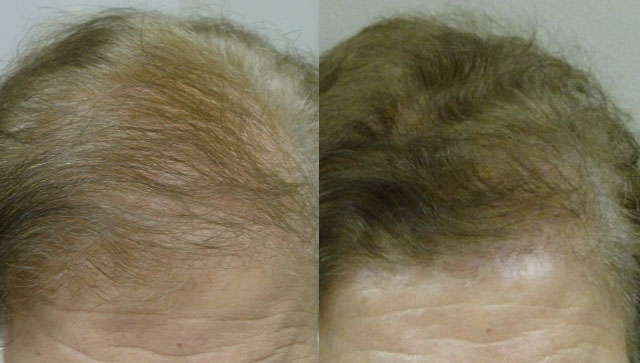 Non-Surgical Hair Restoration