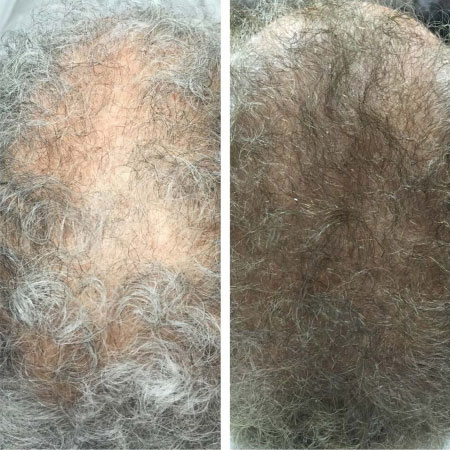 Non-Surgical Hair Loss Treatment