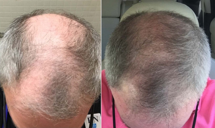 Hair Loss Treatment, Chandler AZ