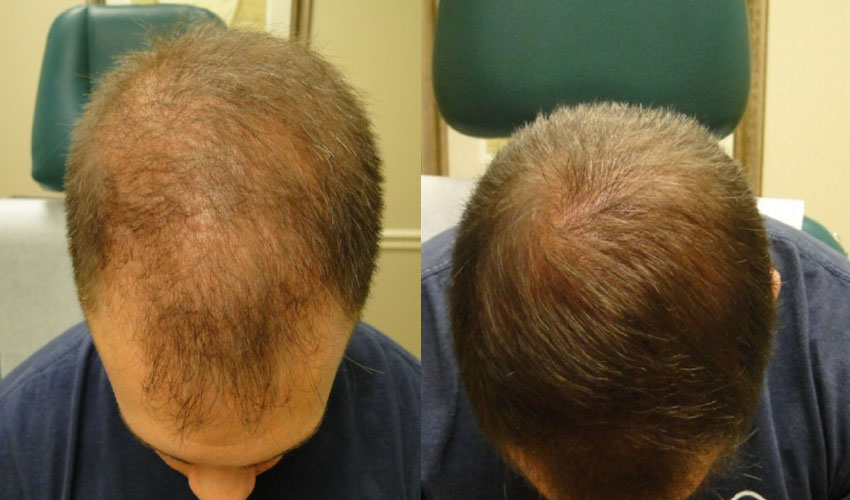 Hair Loss Treatment, Phoenix AZ