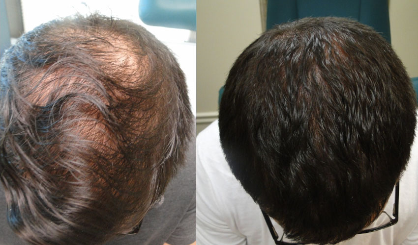 Hair Loss Treatment, Tempe AZ