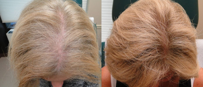 Non-Surgical Hair Restoration, Tempe AZ
