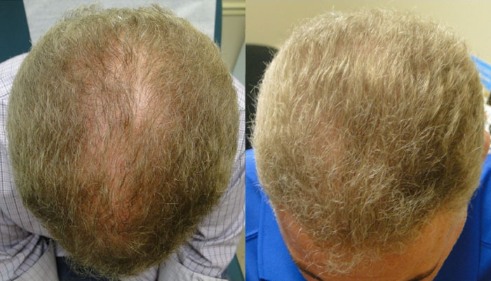 Non-Surgical Hair Loss Treatment, Chandler AZ