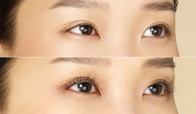 Eyelash Treatment With Latisse