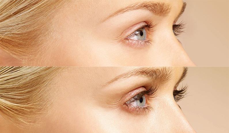Eyelash Treatment With Latisse