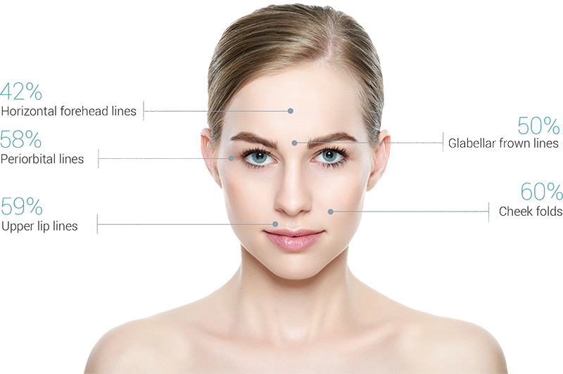 Measured Wrinkle Improvements Achieved with amiea med Exceed