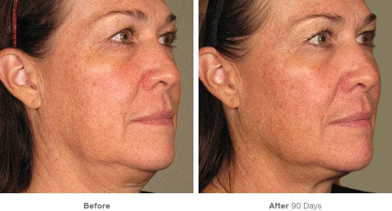 Ultherapy Before & After